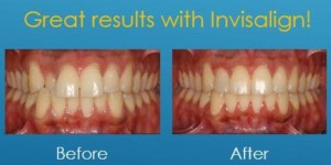 An ideal bite with Invisalign treatment.