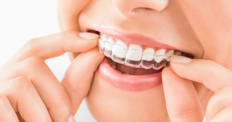 Smile with Invisalign clear aligner