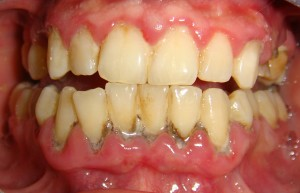 Periodontal disease resulting from inadequate hygiene
