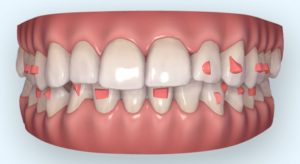 Digital preview of a smile with clear aligner attachments on teeth