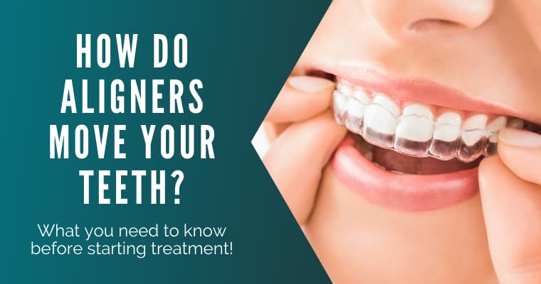"A close-up of a woman putting a clear aligner in her mouth with text ""How do aligners move your teeth? What you need to know before starting treatment!"""