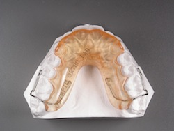 Anterior biteplate to correct deep overbites