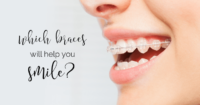 Which braces will help you smile?