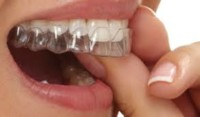clear aligners before cosmetic bonding
