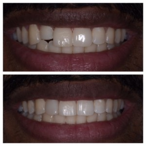 ideal tooth position allows ideal bonding