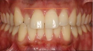 Clear aligners needed before bonding