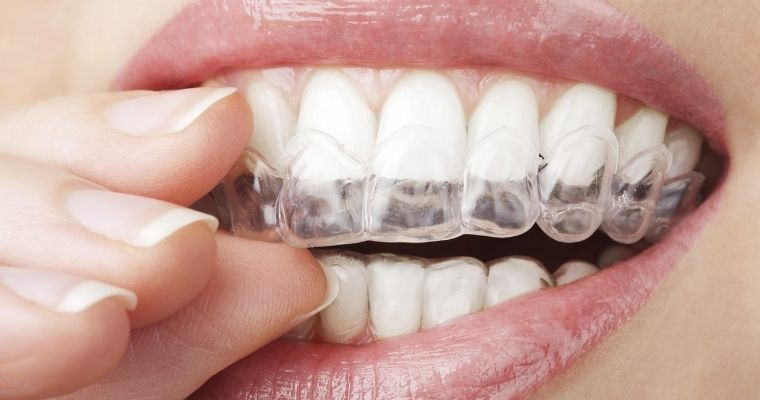 A close-up of a person holding a clear aligner to their teeth